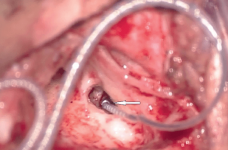 Resim 2 implantasyon son¬rası görünümü .png