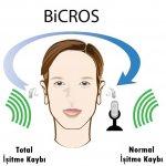 BiCROS Uygulama.JPG